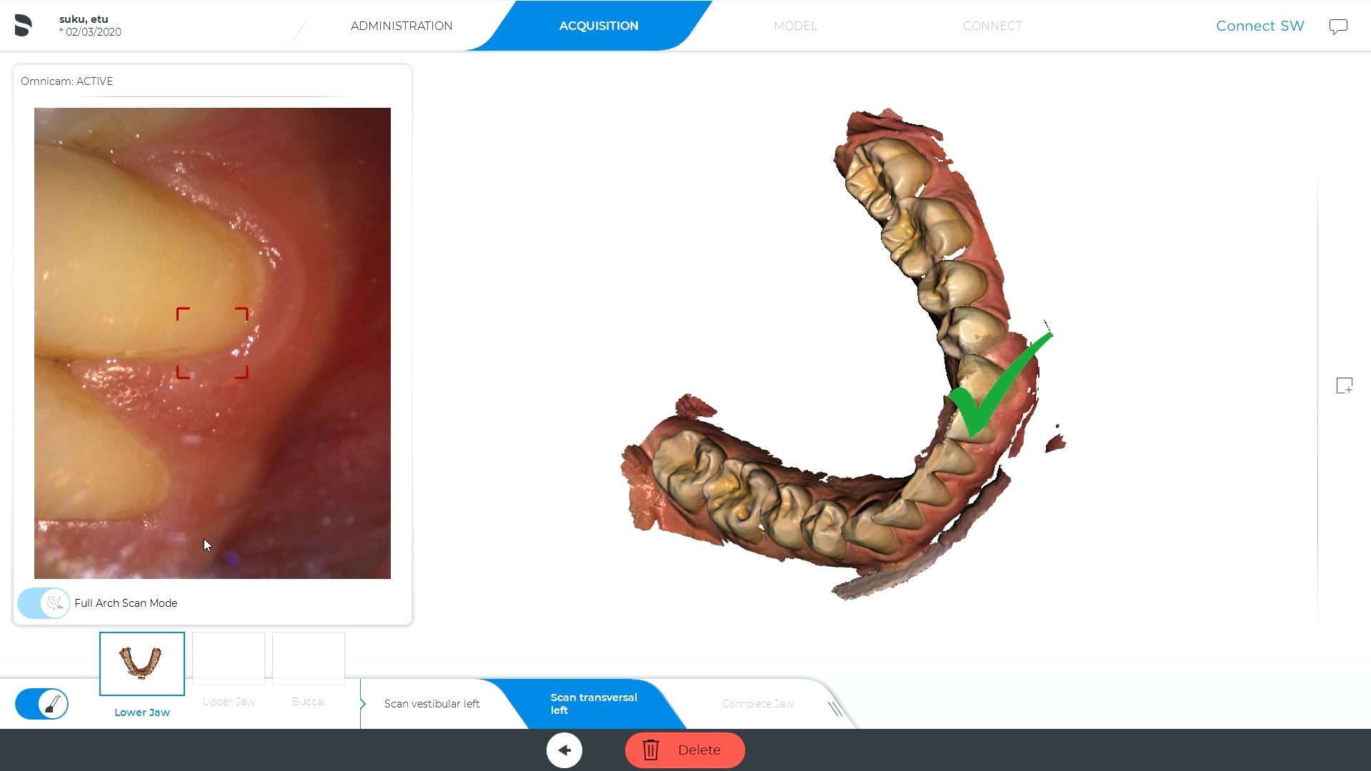 Invisalign jäljennös – Connect SW – CEREC Omnicam