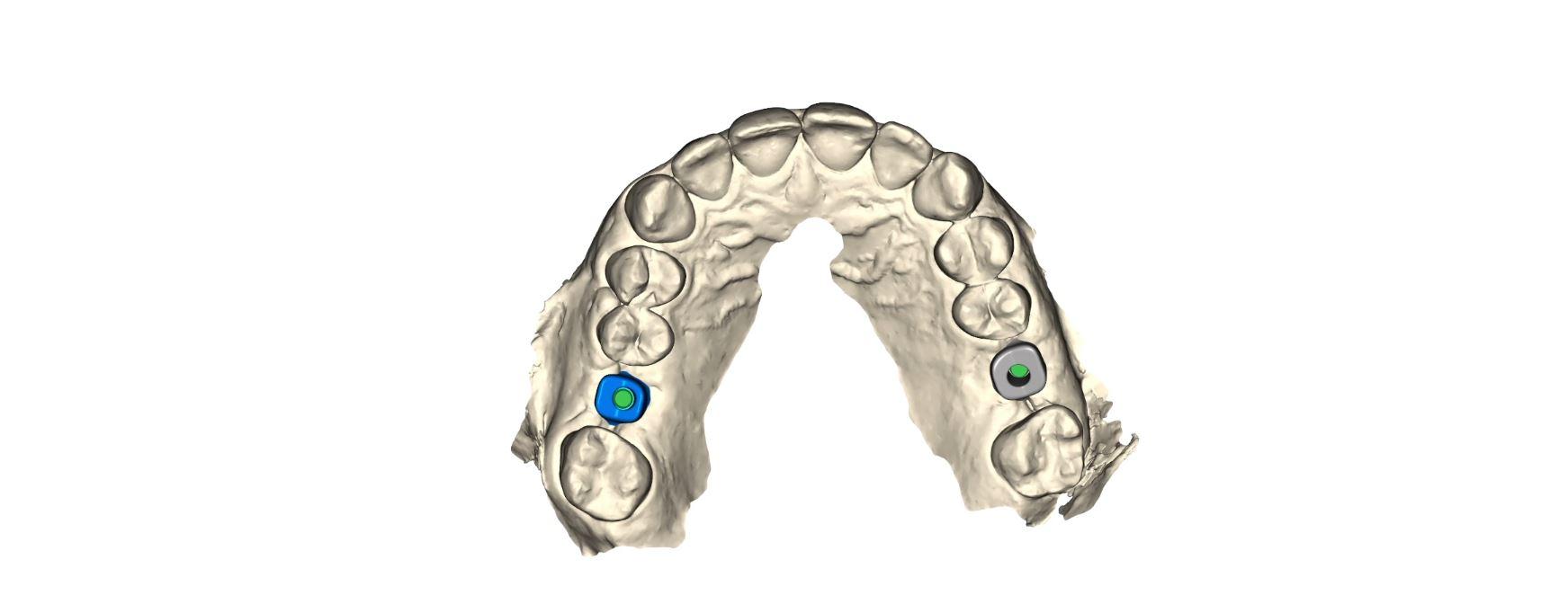 Atlantis yksilölliset implanttijatkeet